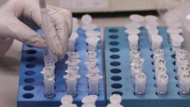 Photo of علماء أمريكيون يعلنون فشل دواء في علاج فيروس كورونا