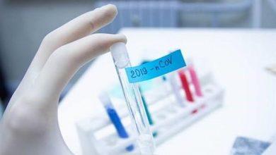 Photo of علماء أستراليون يكشفون عن عقار يقضى على فيروس كورونا خلال 48 ساعة