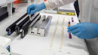 Photo of دراسة صينية : فيروس كورونا تحوّر عشرات المرات وأنتج طفرات خطيرة